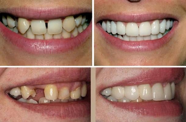 ايمپلنت دندان با روکش چه تفاوتی دارد54645645