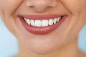 اصلاح طرح لبخند 541641