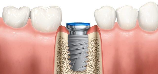 ايمپلنت دندان با روکش چه تفاوتی دارد؟4464