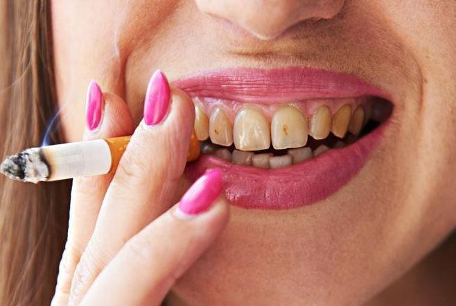 اثرات سیگار بر دندان +52562