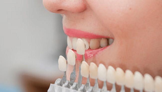 ايمپلنت دندان با روکش چه تفاوتی دارد5456445