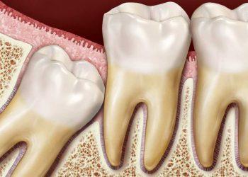 دندان عقل نهفته