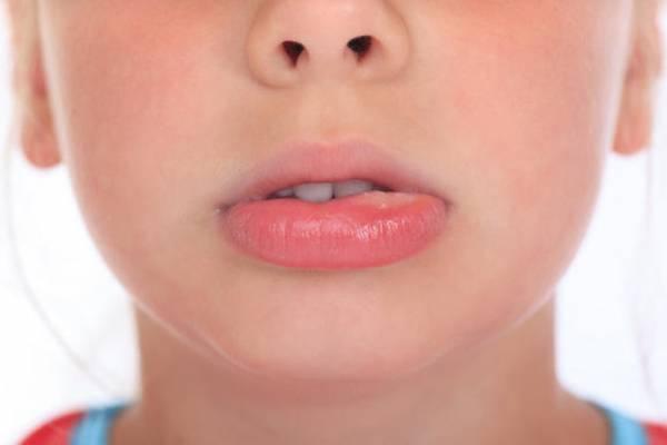 جراح ضایعات داخل دهان 6494949
