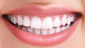 بهترین مرکز اصلاح طرح لبخند 97979196