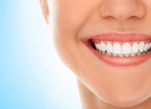 اصلاح طرح لبخند 49649641