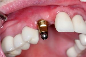 کاشت دندان 6519494