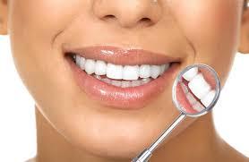 مراحل لمینت دندان 658421321