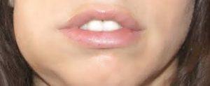 جراحی دندان های نهفته 659654964964