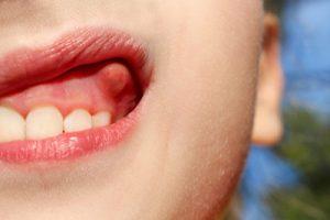 تومورهای دهان 4949491