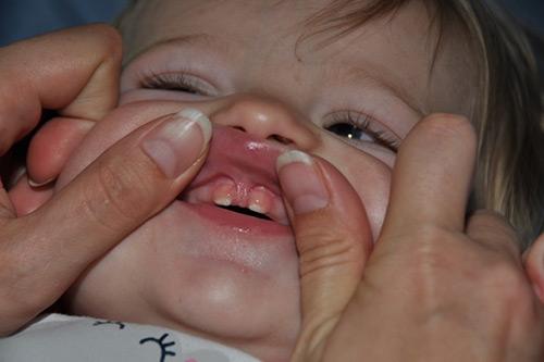 درمان پارگی فرنوم لب بالا 949498494