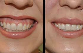 اصلاح طرح لبخند 65419494