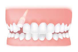 دندان نهفته 14949451
