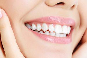 اصلاح طرح لبخند 9494944