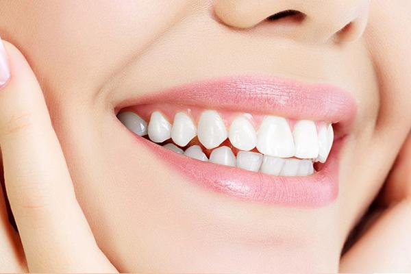 لمینت دندان نامرتب 542120252415152
