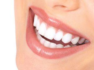 اصلاح طرح لبخند 6514694194