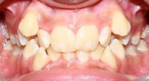 دندان عقل نهفته 418187484