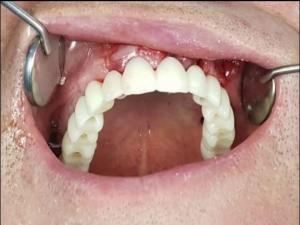 ممنوعیت های ایمپلنت دندان چیست 19641949491