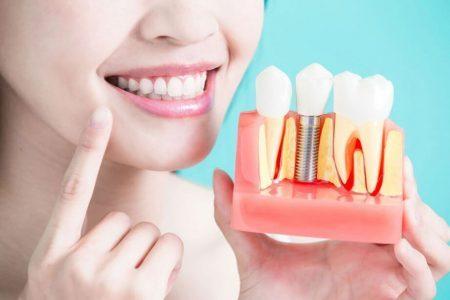 طول عمر ایمپلنت دندان 494949494