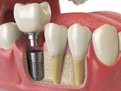 شرایط ایمپلنت دندان 4949649958
