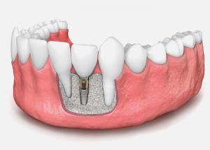 کاشت ایمپلنت دندان 51984894