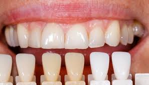 کامپوزیت دندان 4949189