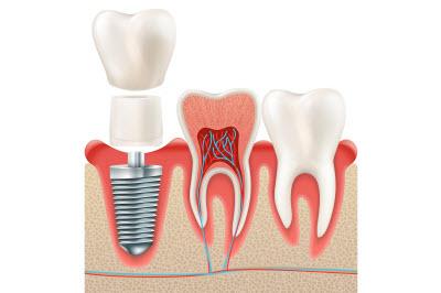 مراحل انجام ایمپلنت دندان 4949494