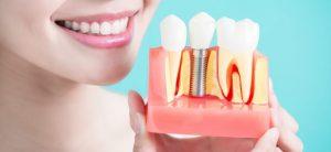 آیا ایمپلنت دندان دائمی است 8949494