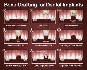 ایمپلنت دندان 98498114