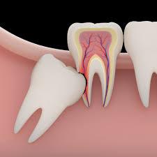 دندان عقل نهفته 949491941