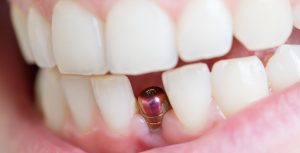 ایمپلنت دندان 984198494