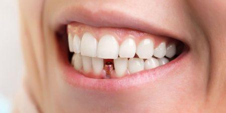 نحوه مراقبت چه زمانی بعد از ایمپلنت می توان ورزش کرد 615949494از ایمپلنت دندان می تواند در موفقیت این جراحی تاثیر بسزایی داشته باشد. یکی از نکات مهم چگونگی تحرک بعد از ایمپلنت دندان می باشد. اینکه چه زمانی بعد از ایمپلنت می توان ورزش کرد سوالی است که برای خیلی افراد پیش می آید. در این مقاله می خواهیم به این پرسش پاسخ داده و نحوه مراقبت صحیح از ایمپلنت دندان را توضیح دهیم.