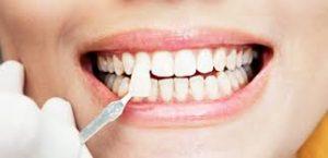 لمینیت دندان 94949494