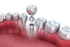 شرایط ایمپلنت دندان 94949194964