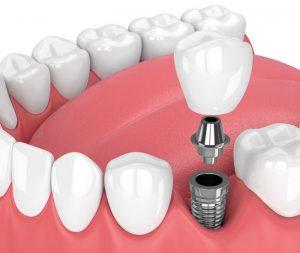 آیا ایمپلنت دندان دائمی است 49490494