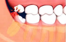 دندان عقل نهفته 9191291984