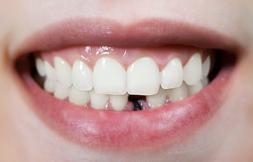 ممنوعیت های ایمپلنت دندان چیست 641949494