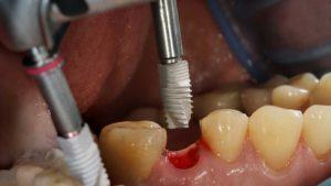 خونریزی بعد از ایمپلنت دندان 321669