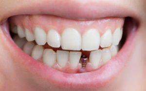 علائم جوش خوردن ایمپلنت دندان  5454558