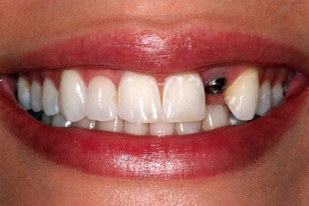علائم جوش خوردن ایمپلنت دندان 524587451