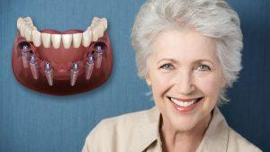 نکته کلیدی قبل از انجام ایمپلنت دندان 412037