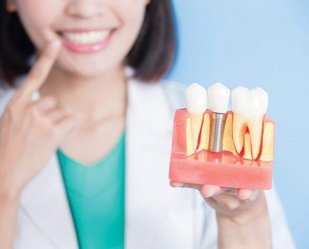 نکته کلیدی قبل از انجام ایمپلنت دندان 45421222