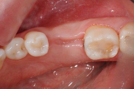 علل تحلیل لثه بعد از کشیدن دندان 457878