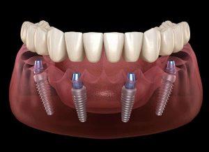 ایمپلنت چند دندان با هم 21387