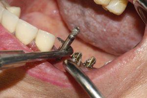 علت جوش نخوردن پیچ ایمپلنت دندان 2013859