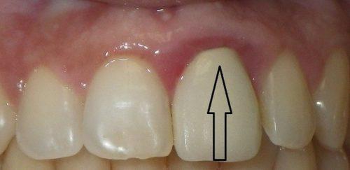 علت کج شدن پایه ایمپلنت دندان 2134548950012