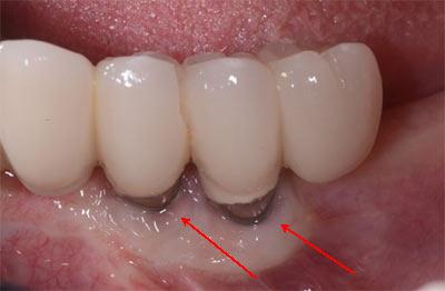 بوی بد دهان بعد از ایمپلنت دندان به چه دلیل است 5446965