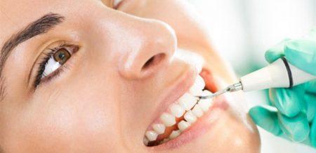سن مناسب برای لمینت دندان 5416556882