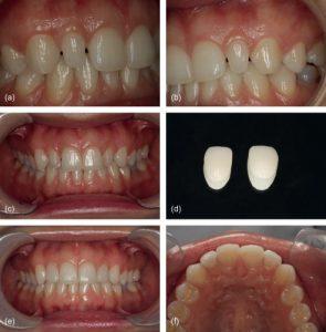 مراحل لمینت دندان  5545623210