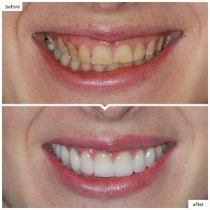 کاندید مناسب برای لمینت دندان  545996200