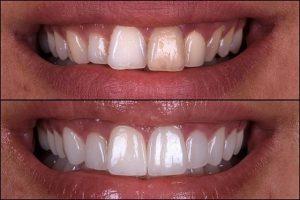 لمینت دندان چند جلسه زمان نیاز دارد 12120003226478978